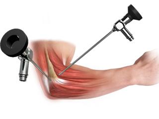 Elbow Arthroscopy