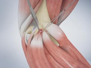 Golfer's Elbow Surgery
