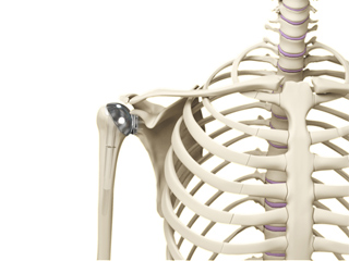 Shoulder Joint Replacement