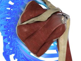 Shoulder Ligament Injuries