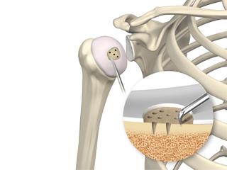 Shoulder Preservation Surgery