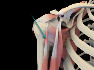 Shoulder Tendonitis