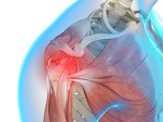 Shoulder Trauma